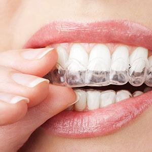 Blanchiment des dents à l'aide de gouttières