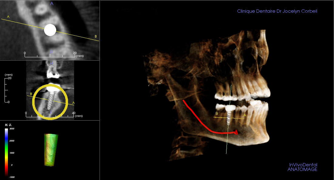 Diagnostic préparatoire en vue d'un implant