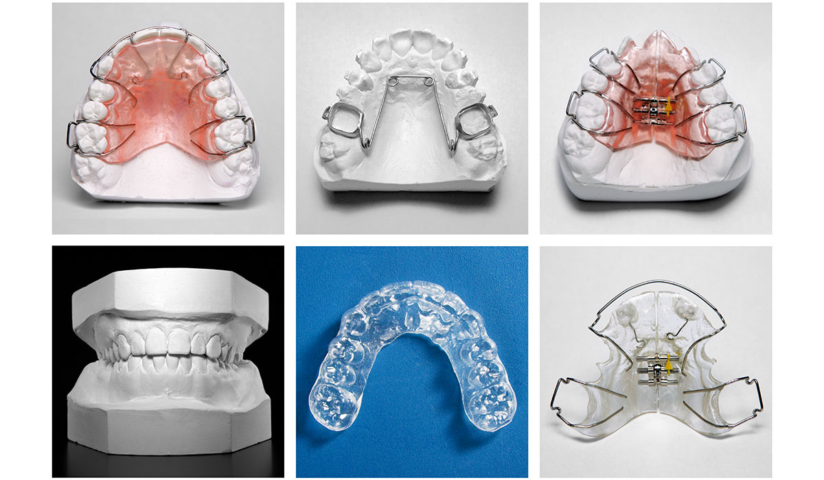 Orthodontie amovible