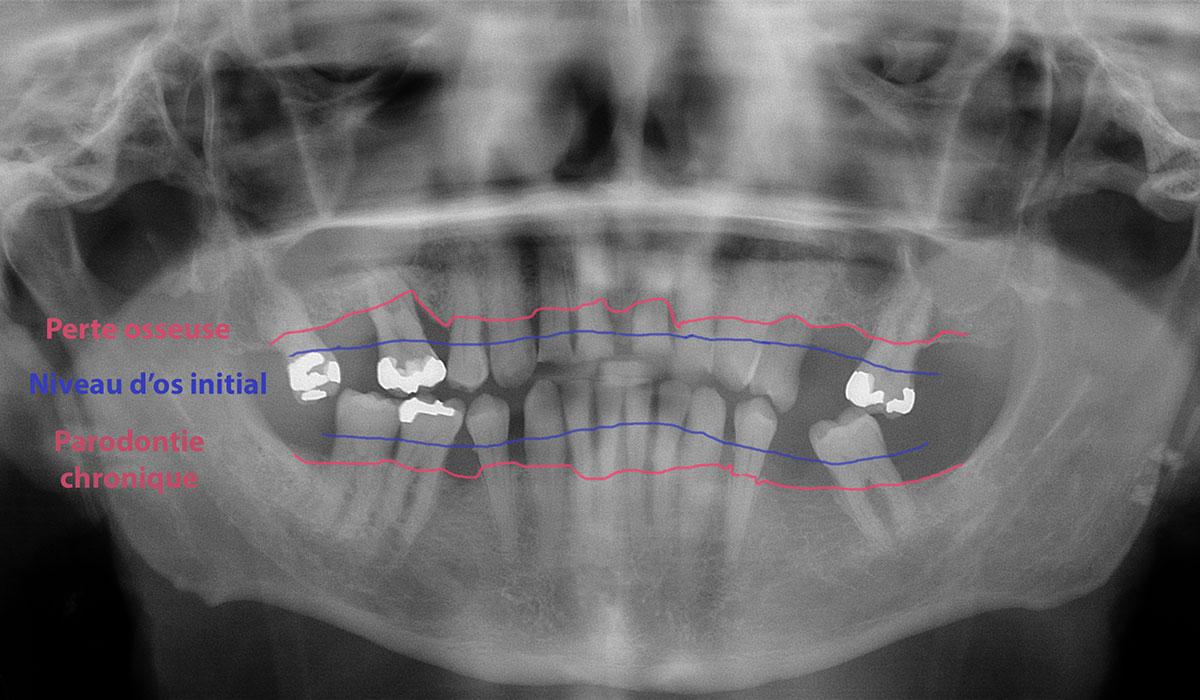 Parodontite chronique