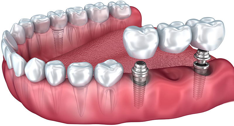 Pont fixe sur implants
