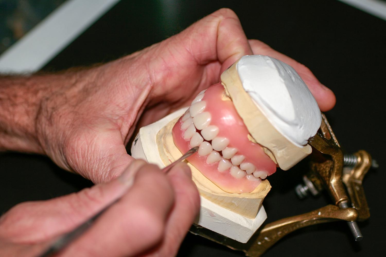 Installation d'une prothèse complète